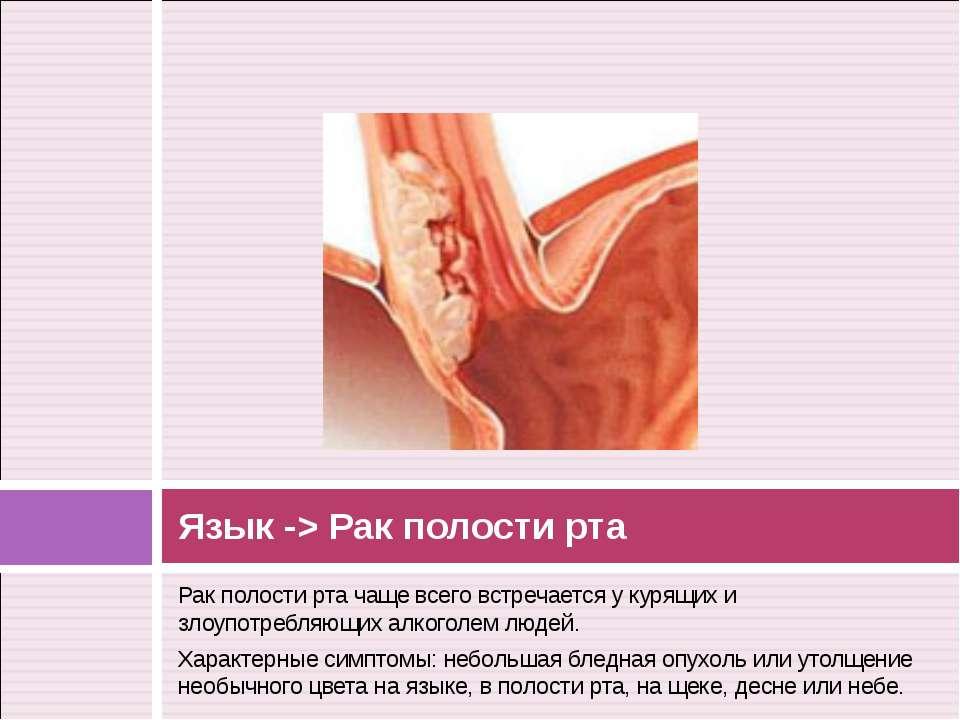Рак полости рта чаще всего встречается у курящих и злоупотребляющих алкоголем...