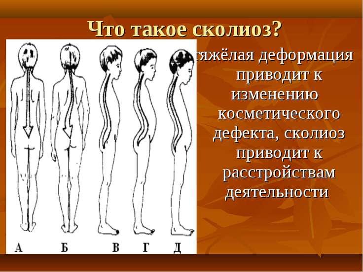 Что такое сколиоз? тяжёлая деформация приводит к изменению косметического деф...