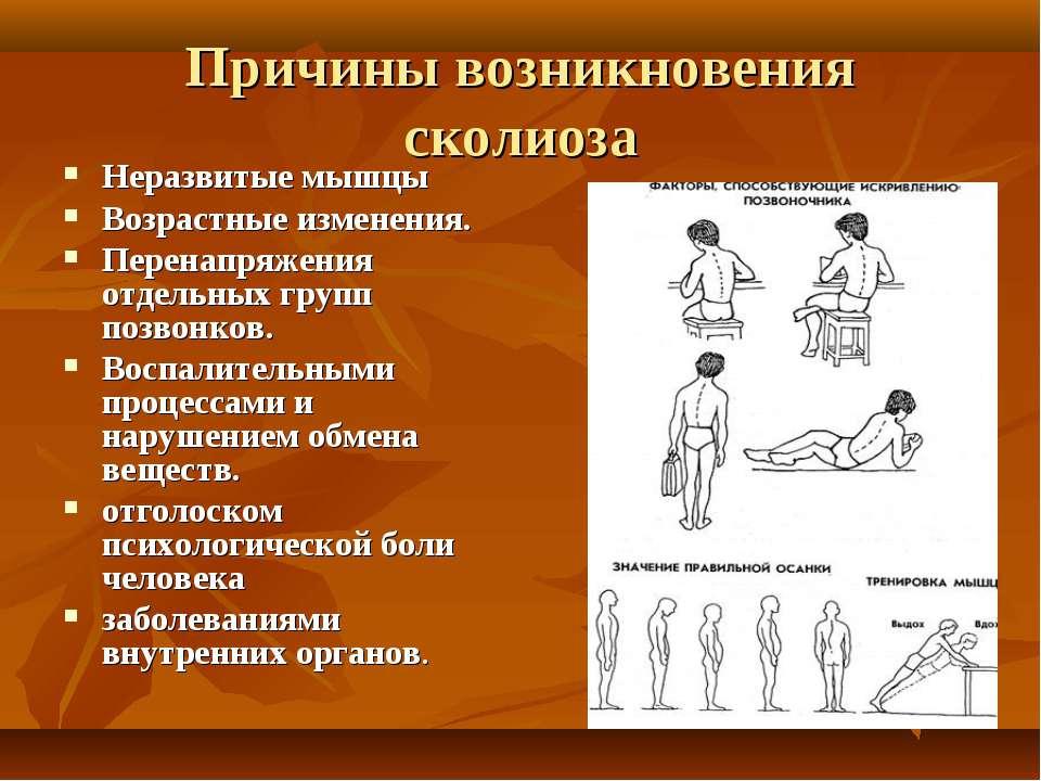 Причины возникновения сколиоза Неразвитые мышцы Возрастные изменения. Перенап...