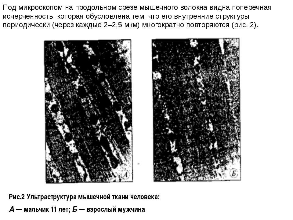 Рис.2 Ультраструктура мышечной ткани человека: А— мальчик 11 лет;Б— взросл...