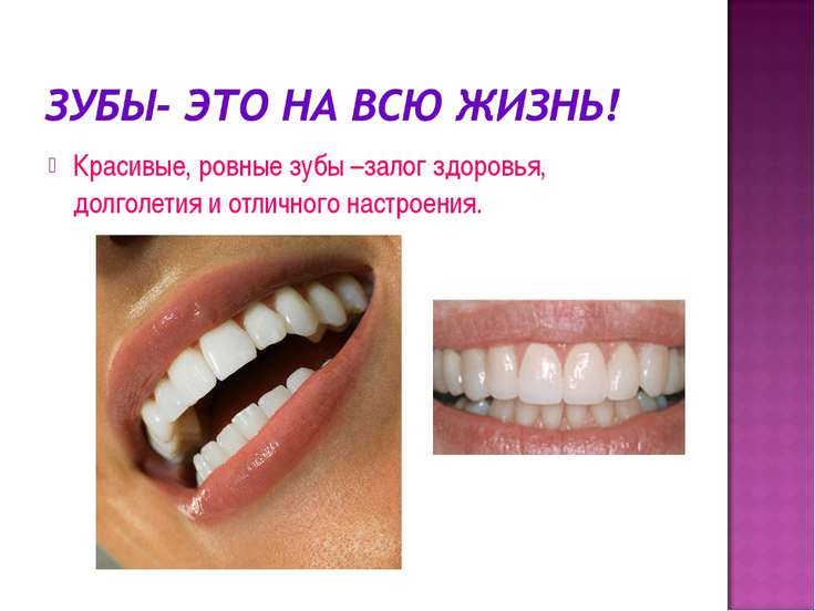 Красивые, ровные зубы –залог здоровья, долголетия и отличного настроения.