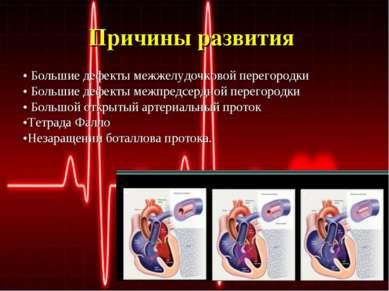 Причины развития • Большие дефекты межжелудочковой перегородки • Большие дефе...
