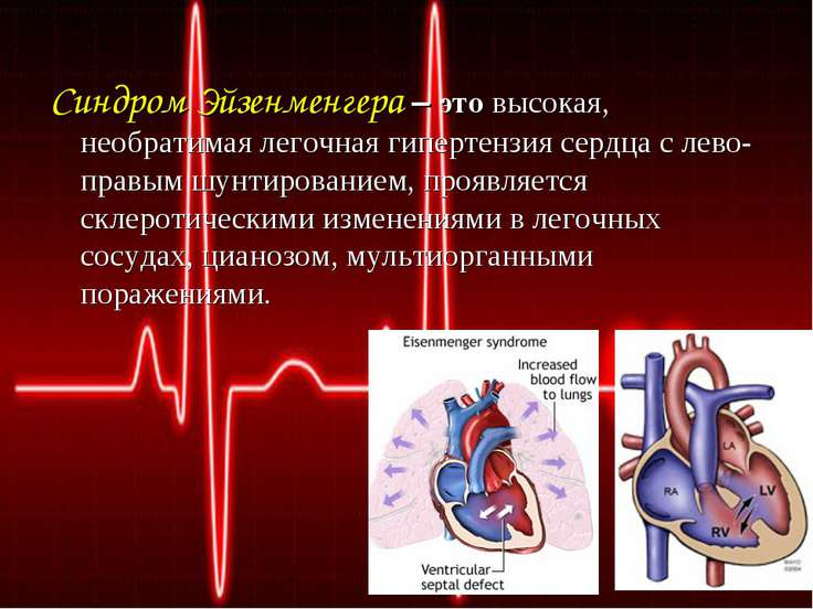 Синдром Эйзенменгера – это высокая, необратимая легочная гипертензия сердца с...
