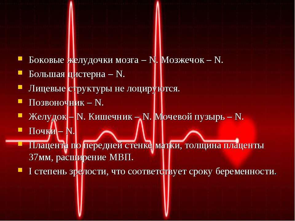 Боковые желудочки мозга – N. Мозжечок – N. Большая цистерна – N. Лицевые стру...