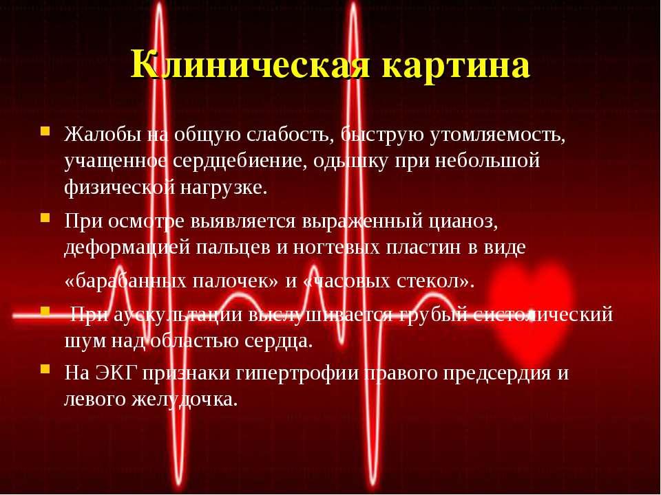 Клиническая картина Жалобы на общую слабость, быструю утомляемость, учащенное...