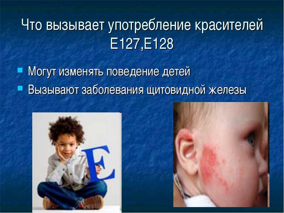 Что вызывает употребление красителей Е127,Е128 Могут изменять поведение детей...