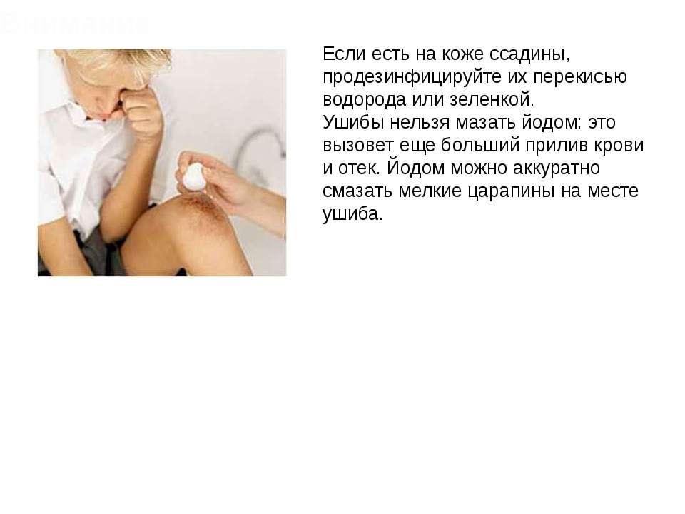 Если есть на коже ссадины, продезинфицируйте их перекисью водорода или зеленк...