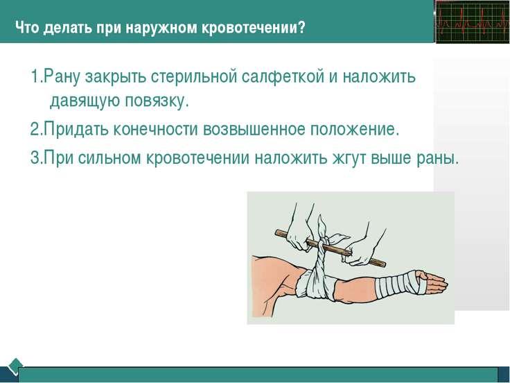 Что делать при наружном кровотечении? 1.Рану закрыть стерильной салфеткой и н...