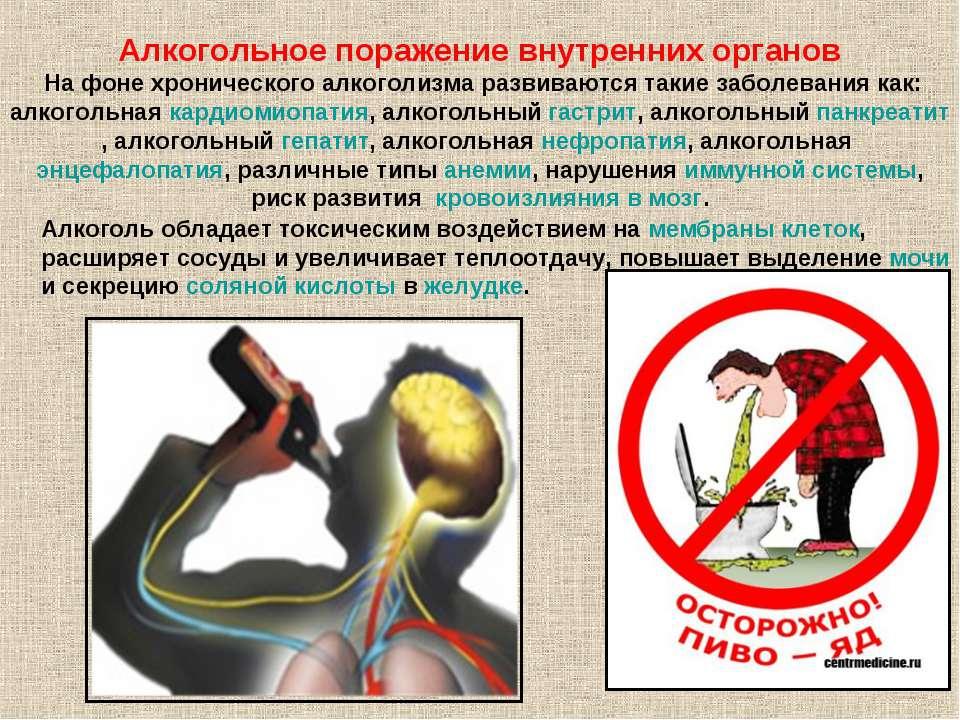 Алкогольное поражение внутренних органов На фоне хронического алкоголизма раз...