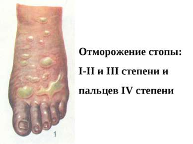 Отморожение стопы: I-II и III степени и пальцев IV степени