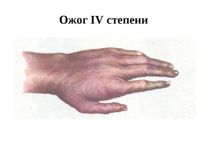 Ожог IV степени