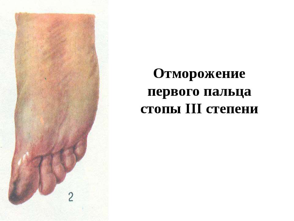 Отморожение первого пальца стопы III степени