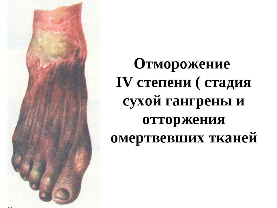 Отморожение IV степени ( стадия сухой гангрены и отторжения омертвевших тканей