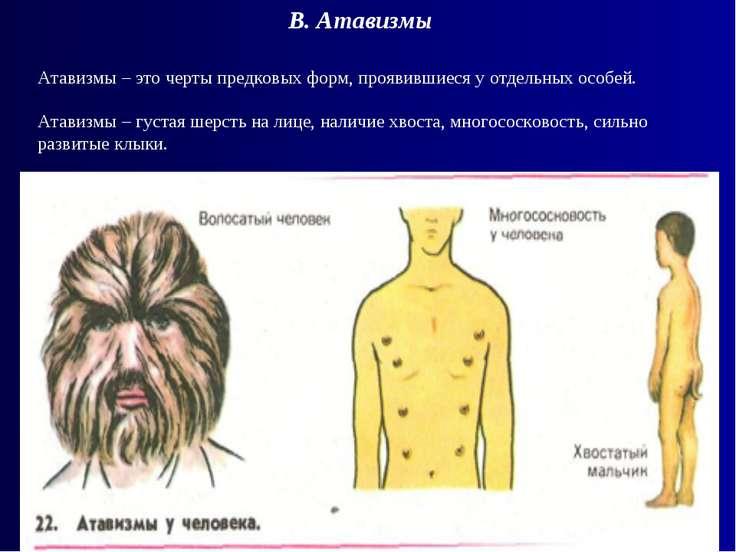 Атавизмы – это черты предковых форм, проявившиеся у отдельных особей. Атавизм...