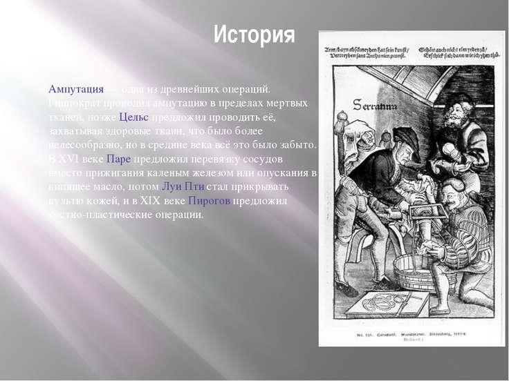 История Ампутация — одна из древнейших операций. Гиппократ проводил ампутацию...