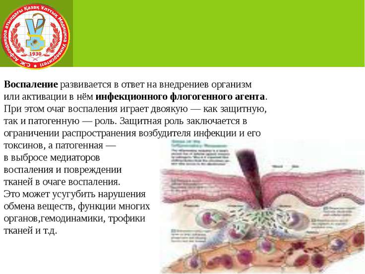 Воспаление развивается в ответ на внедрениев организм или активации в нём инф...