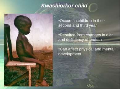 Kwashiorkor child Occurs in children in their second and third year Resulted ...