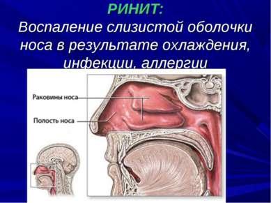 РИНИТ: Воспаление слизистой оболочки носа в результате охлаждения, инфекции, ...