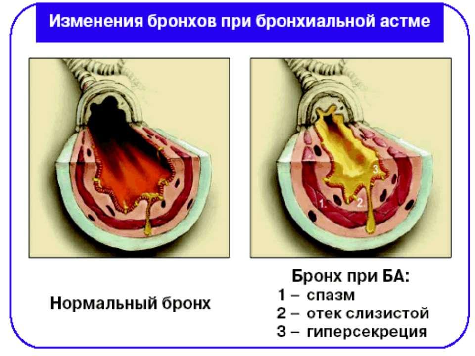 Лечение бронхита дыханием