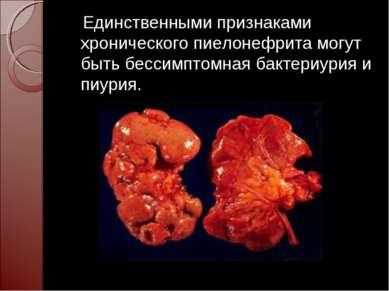 Единственными признаками хронического пиелонефрита могут быть бессимптомная б...