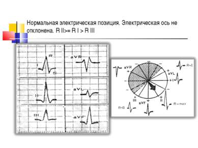 Нормальная электрическая позиция. Электрическая ось не отклонена. R ІІ>= R І ...
