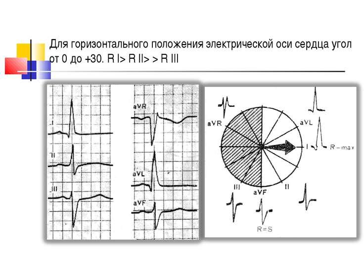 Для горизонтального положения электрической оси сердца угол от 0 до +30. R І>...