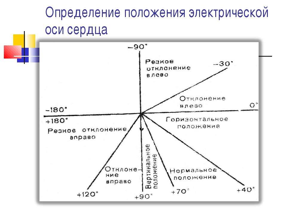 задача определение эос картинка большей степени, чем