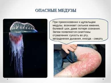 При прикосновении к щупальцам медузы, возникает сильное жжение, болевой шок, ...