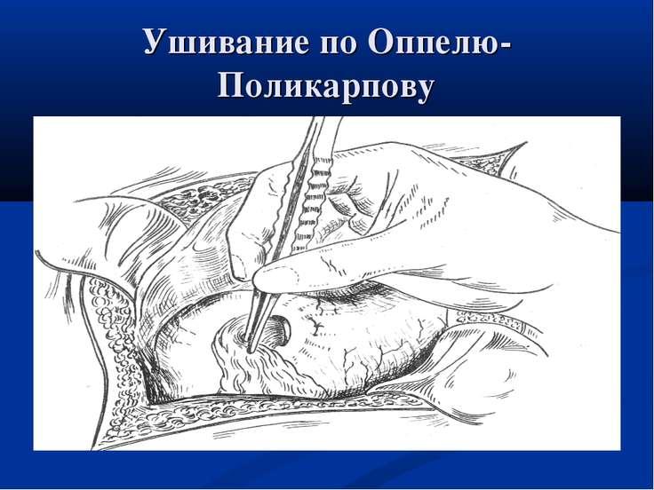 Ушивание по Оппелю-Поликарпову