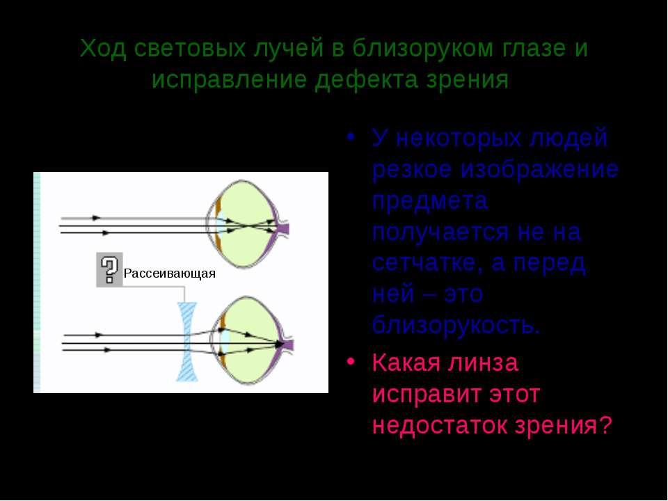 Ход световых лучей в близоруком глазе и исправление дефекта зрения У некоторы...