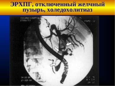 ЭРХПГ, отключенный желчный пузырь, холедохолитиаз Кафедра хирургических болез...