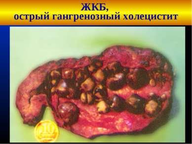 ЖКБ, острый гангренозный холецистит Кафедра хирургических болезней №1 Кафедра...