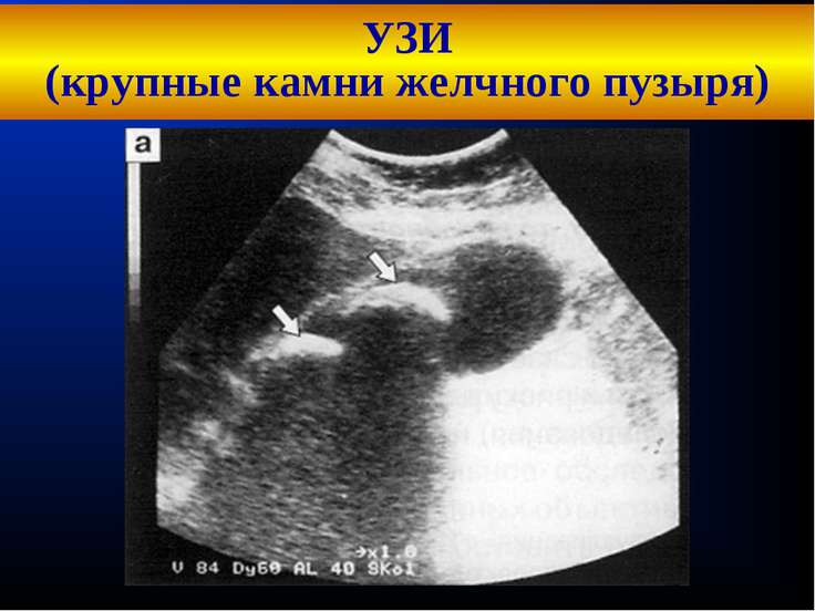 УЗИ (крупные камни желчного пузыря) Кафедра хирургических болезней №1 Кафедра...