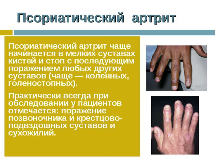Псориатический артрит Псориатический артрит чаще начинается в мелких суставах...