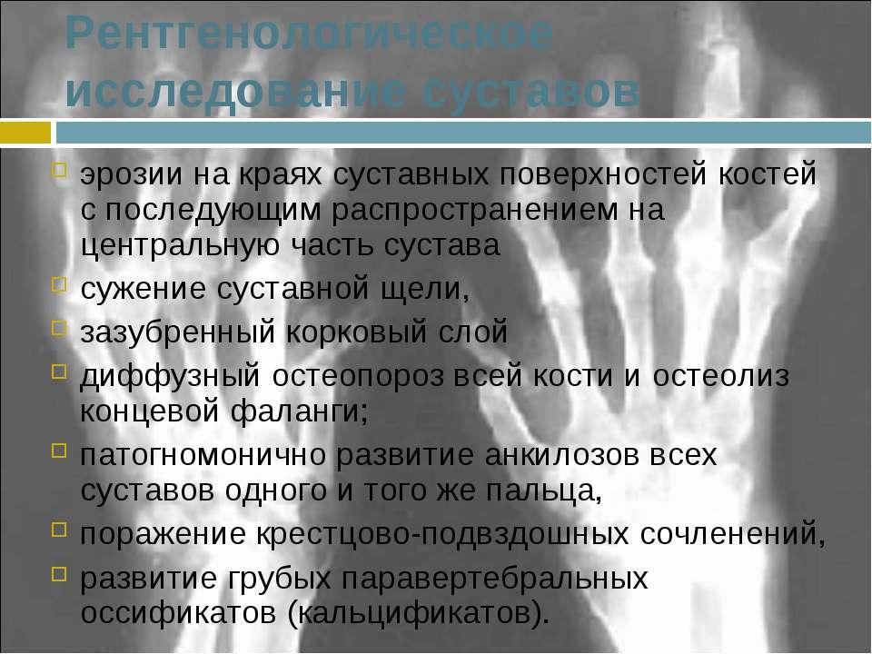 Рентгенологическое исследование суставов эрозии на краях суставных поверхност...