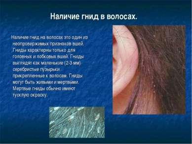 Наличие гнид в волосах. Наличие гнид на волосах это один из неопровержимых п...