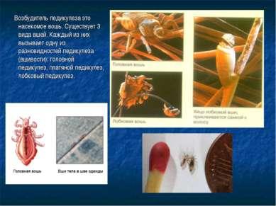 Возбудитель педикулеза это насекомое вошь. Существует 3 вида вшей. Каждый из ...