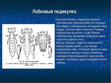 Лобковый педикулез. Причиной лобкового педикулеза является лобковая вошь (Ped...