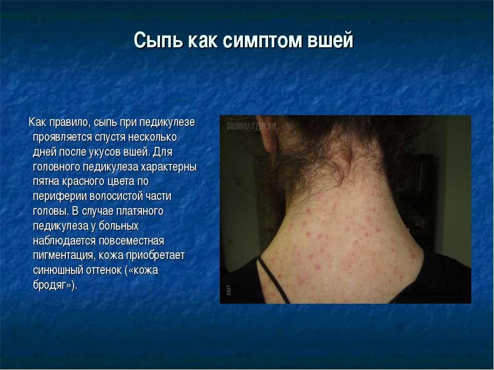Сыпь как симптом вшей Как правило, сыпь при педикулезе проявляется спустя нес...