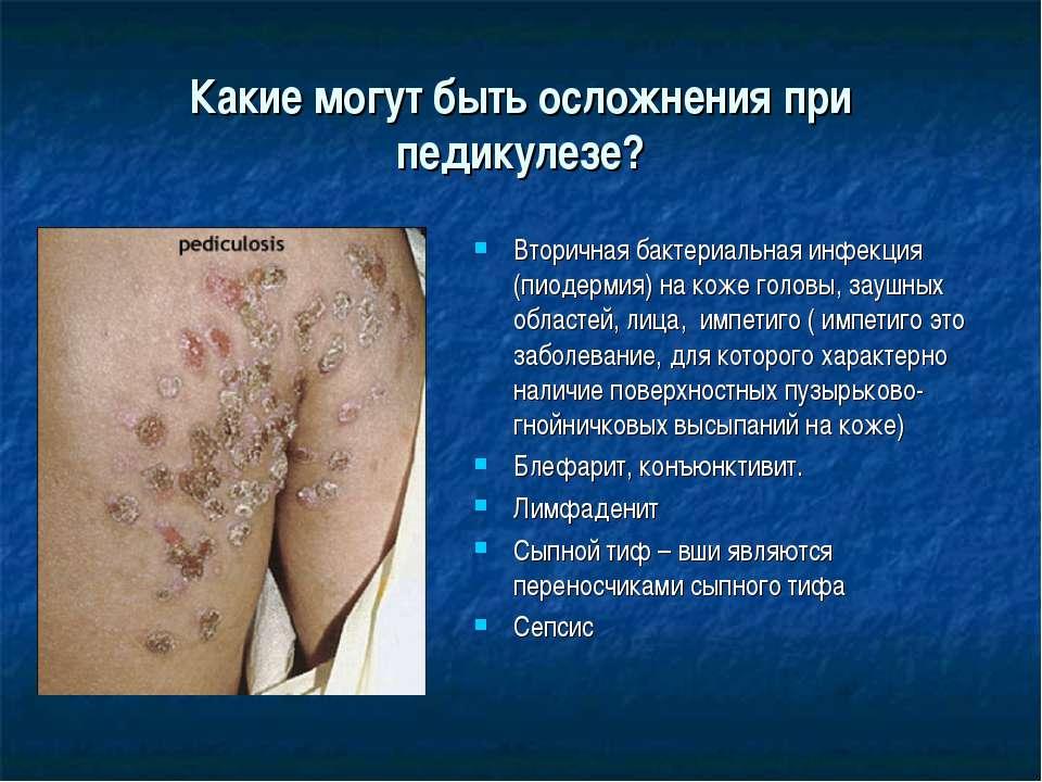 Какие могут быть осложнения при педикулезе? Вторичная бактериальная инфекция ...