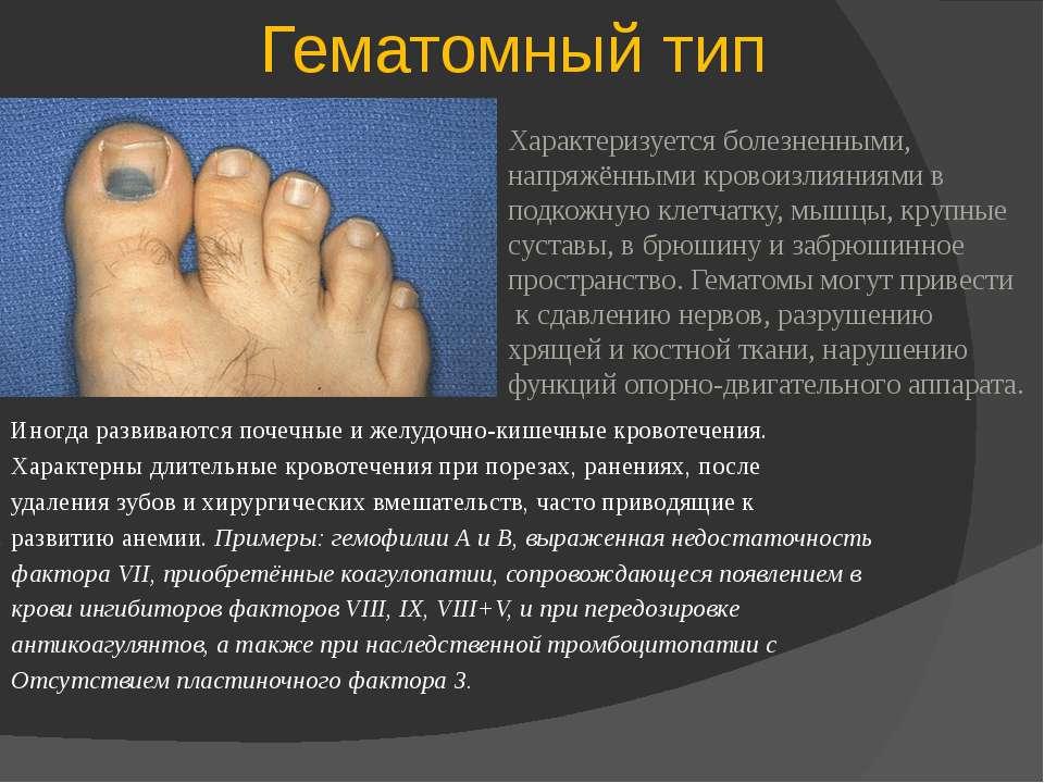 Гематомный тип Иногда развиваются почечные и желудочно-кишечные кровотечения....