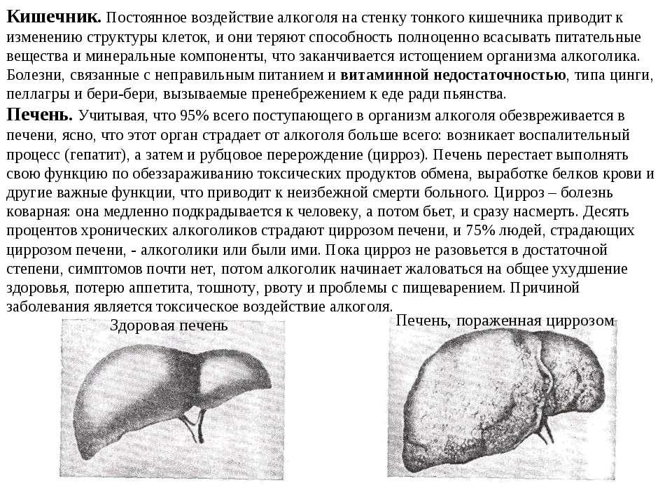Кишечник. Постоянное воздействие алкоголя на стенку тонкого кишечника приводи...