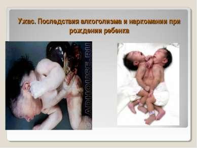 Ужас. Последствия алкоголизма и наркомании при рождении ребенка