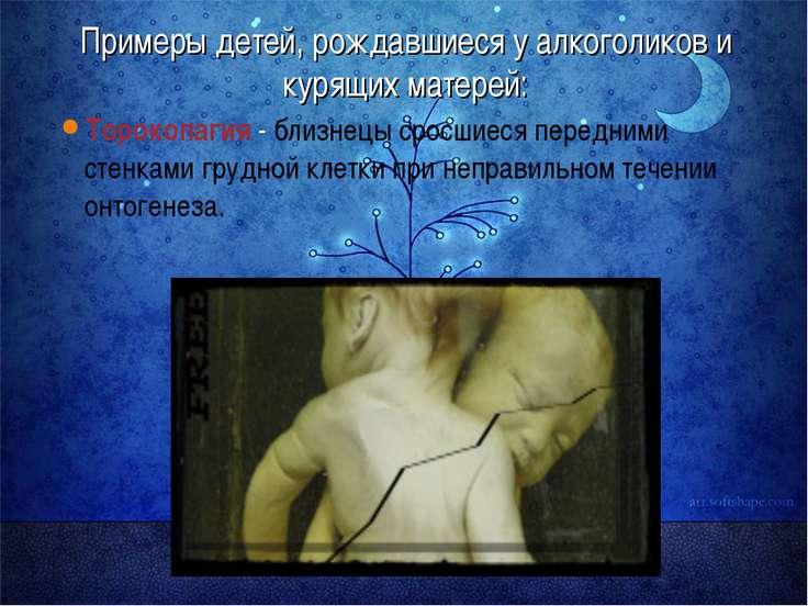 Примеры детей, рождавшиеся у алкоголиков и курящих матерей: Торокопагия - бли...