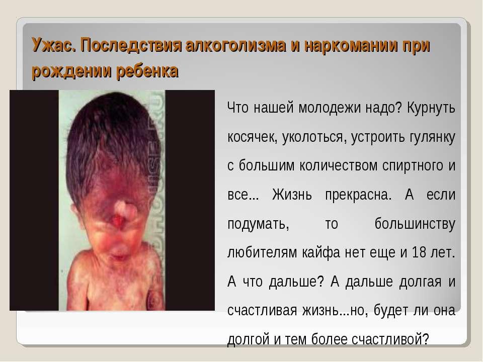Ужас. Последствия алкоголизма и наркомании при рождении ребенка Что нашей мол...