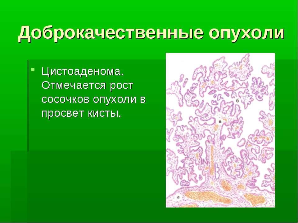 Доброкачественные опухоли Цистоаденома. Отмечается рост сосочков опухоли в пр...