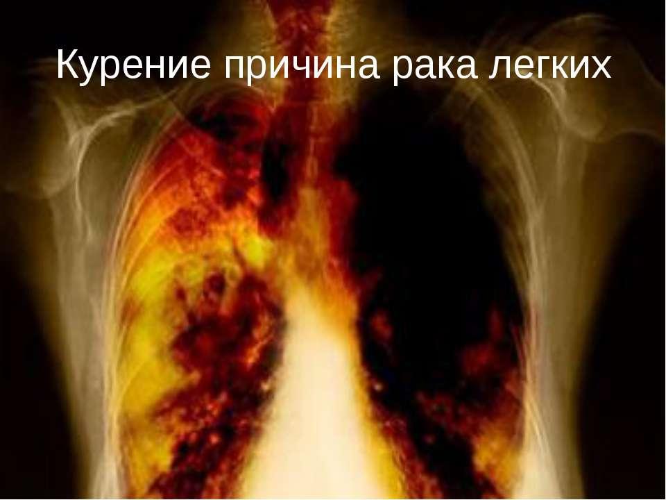 Курение причина рака легких
