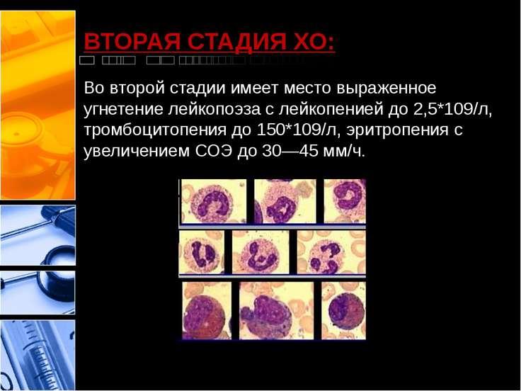 ВТОРАЯ СТАДИЯ ХО: Во второй стадии имеет место выраженное угнетение лейкопоэз...
