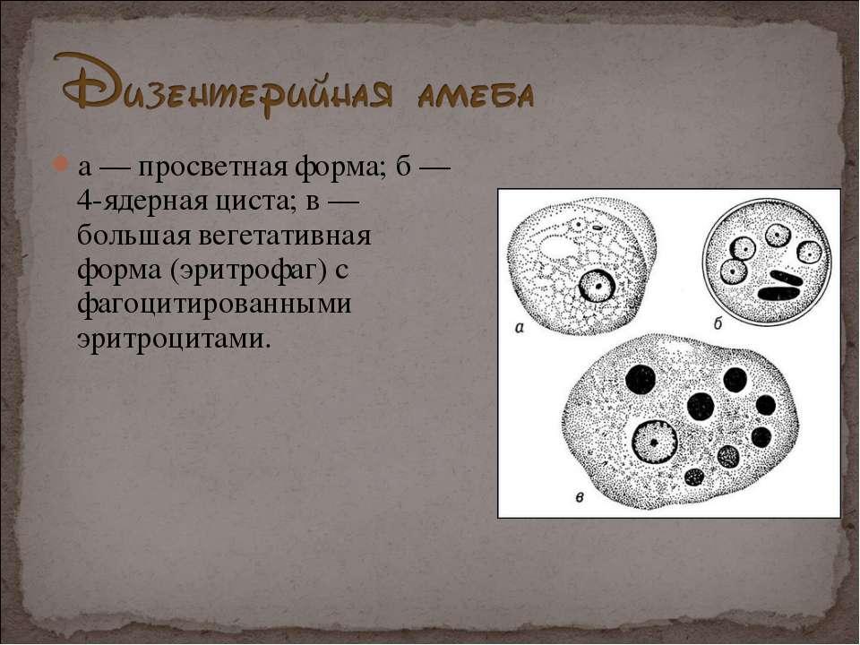 а — просветная форма; б — 4-ядерная циста; в — большая вегетативная форма (эр...