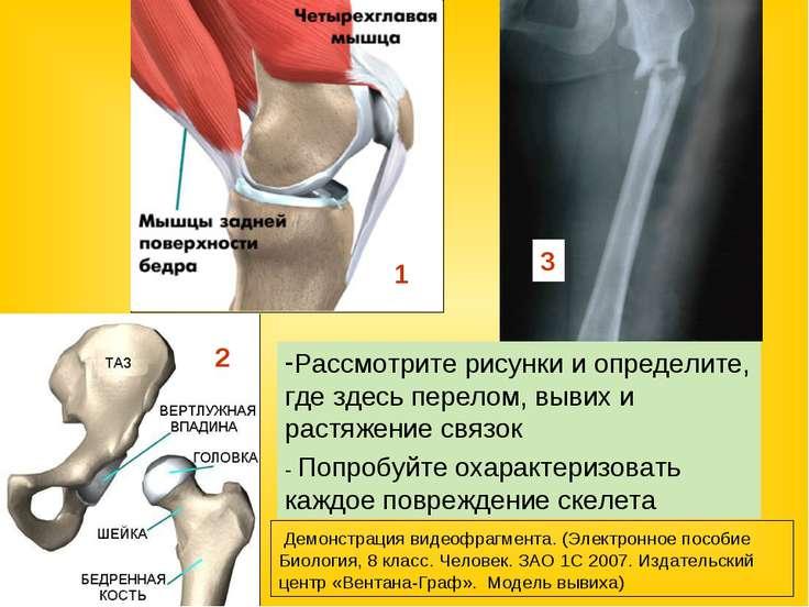 первая помощи при ушибах переломах костей и вывихов суставов